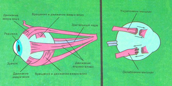 Близорукость наследственное заболевание